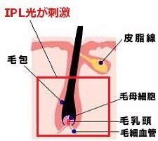 IPL光が刺激する範囲
