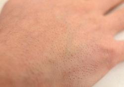 カミソリでのムダ毛処理後の肌荒れ